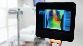 AI algorithm detects cancer in digital x-ray