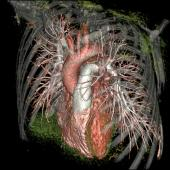 Chest CT angiography
